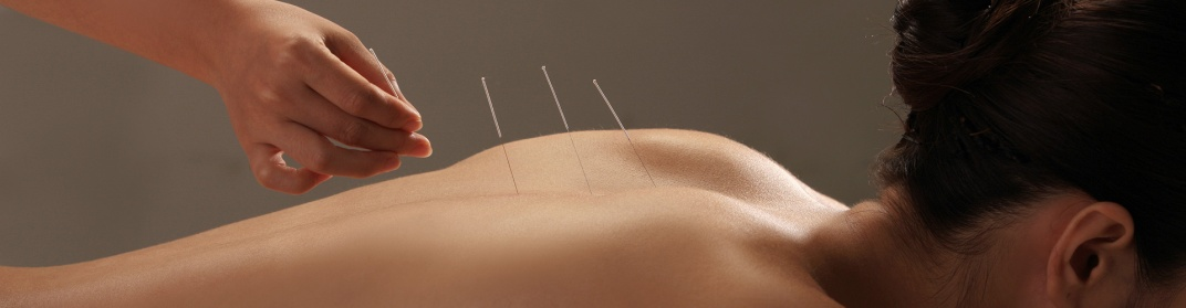 acupuncture keighley